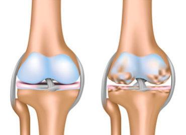 Artrosis síntomas detección oportuna