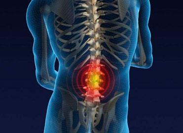 ¿Cómo saber si tengo hernia de disco?