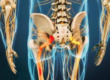 Método de aplicación del PRP o Bioestimulación celular en lesiones articulares